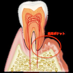 歯周ポケットと歯石・歯垢の図